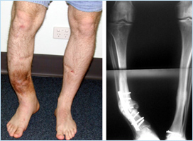 Post-traumatic bone deformities